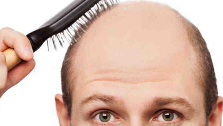 Genç erkekler yeni başlayan saç kayıplarını erteleyebilirler mi
